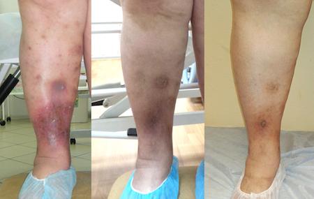 Littleone замена тазобедренного сустава заговоры от ломоты в суставах